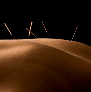 Acupuncture patient